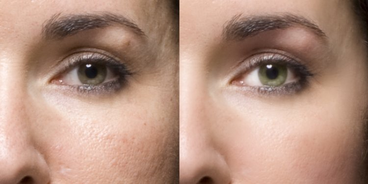 Before - After - Photography